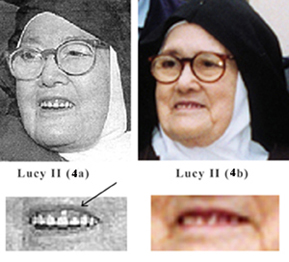 The impostor Sister Lucy's false teeth 1